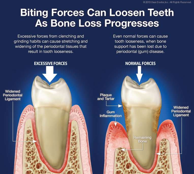biting-forces Loose Teeth & Bite Problems