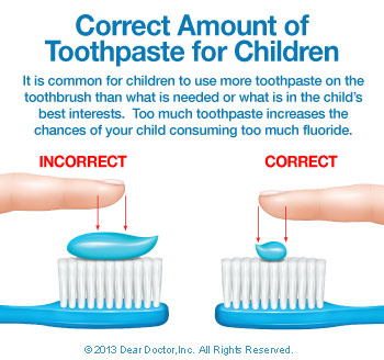 correct-amount-of-toothpaste-thumb Fluoride & Your Child
