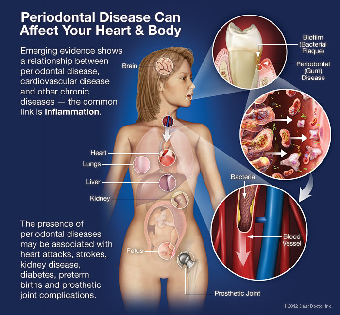 gum-disease-can-affect-body Oral Systemic Connection