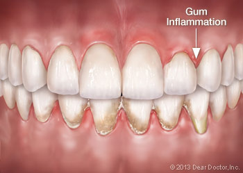 gum-inflammation Oral Systemic Connection