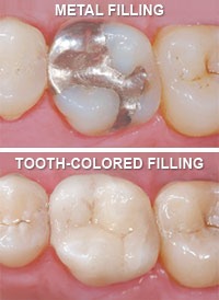 metal-vs-tooth-colored-fillings Tooth-Colored Fillings