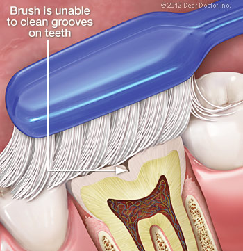 toothbrush-cleaning-teeth Sealants