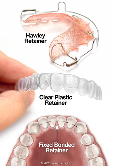 types-of-orthodontic-retainers-1 Post-Orthodontic Care