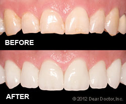 veneers-before-after Veneers