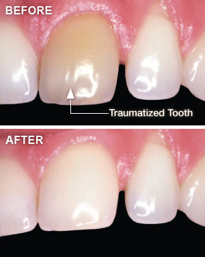 whitening-traumatized-teeth Whitening Traumatized Teeth